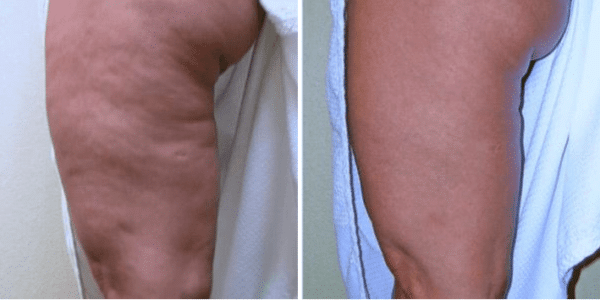 Cellulite Reduction Before & After New York City