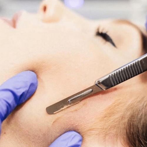 Dermaplaning New York City
